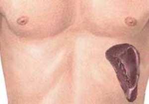 Как болит селезенка: симптомы - Гематология
