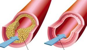 Боль в области сердца: причины и симптомы боли