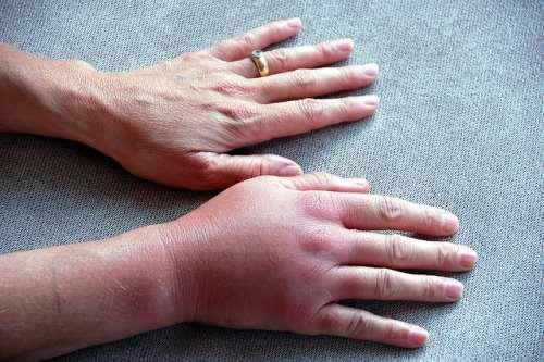 Отекают пальцы рук по утрам при беременности