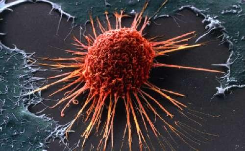 Рак (болезнь) - это... Что такое Рак (болезнь)?